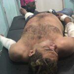 Milionário do Brega sofre acidente de moto em Pinheiro